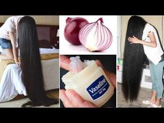 How to use Vaseline and onion to grow hair 2 cm per day Very fast ||| - YouTube Vaseline For Hair, Natural Hair Growth Remedies, Beauty Over 40, Beauty Makeover, Healthy Skin Tips, Hair Secrets, Short Thin Hair, Hair Growth Treatment, Hair Growth Tips