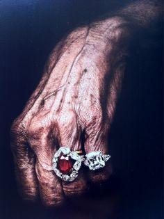 Fancy rings for feeble fingers.