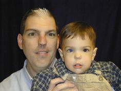 Father and son with Waardenburg Syndrome