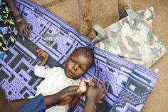 Emanuel ist noch mitten in der #Reha: er war als Säugling unterernährt und leidet seither an Spasmen. Die Übungen entspannen seine Muskeln und helfen ihm, seine Bewegungen zu koordinieren. Credit: Aleksandra Pawloff. #CBR #BurkinaFaso Leiden, Cbr, First Aid