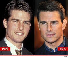 Tom Cruise: Good Genes or Good Docs?