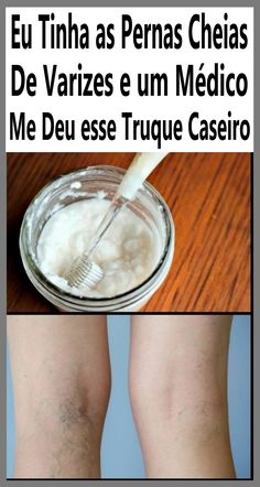 Varicose Vein Remedy, Varicose Veins, Protein Pasta, Vegan Protein, Beach Landscape, Thyroid Problems, Skin Tag, Home Remedies, Health And Beauty