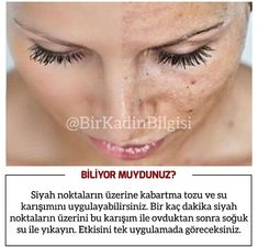 Funny Illusions, Ted Mosby, Hair Upstyles, Beauty Tips For Glowing Skin, Funny Horses, Interesting Information, Natural Health Remedies, Aesthetic Hair, Facial Care