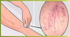 If you or a loved one has been diagnosed with cancer, then you are likely trying to figure out the best treatment protocols is use today. For many, that includes natural cancer treatments. Varicose Vein Remedy, Varicose Veins, Herbal Remedies, Home Remedies, Natural Remedies, Types Of Cancers, Health Resources, Cancer Treatment, Natural Health