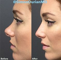 Last week, the Internet freaked out over the idea of five-minute nonsurgical nose jobs. In an essay for the Daily Mail, a woman named Joanna Della-Ragione recounted her tale—complete with photographic proof—of walking into...