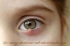 Guaranteed Way to Get Rid of an Eye Stye Fast at Home -- Here's the best home remedy for a sty you'll come across, along with other proven ways to get rid of both upper & lower eye lid styes overnight without the need for conventional antibiotics...