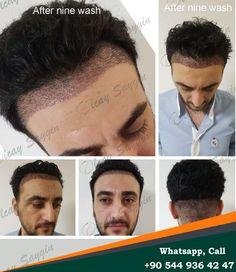 Hair Transplant in Turkey Zen hair olcay saygin Eyebrow Transplant, Hair Transplant Results, Hair Transplant Surgery, Best Hair Transplant, Good Doctor, Doctor In, Hair Clinic, Euro, Zen