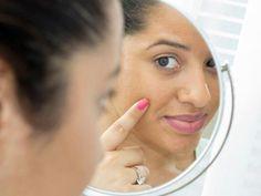 Skin Pigmentation – Symptoms, Causes and Home Remedies #BestEyeCream Skin Care Cream, Oily Skin Care, Skin Care Tips, Neem Powder, Anti Aging Creme, Best Eye Cream, Uneven Skin Tone, Acne Skin, Wellness