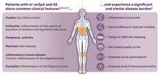Chronic Inflammatory Disease, Autoimmune Disease, Axial Skeleton, C Reactive Protein, Different Types Of Arthritis, Rheumatic Diseases, Si Joint, Ankylosing Spondylitis, Chrome