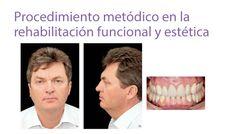 Procedimiento metódico en la rehabilitación funcional y estética ⋆ Laboratorio innovacion dental