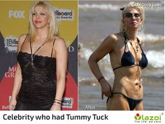 celebrity who had Tummy Tuck surgery. click here to learn more about the tummy tuck surgery