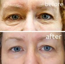 Test These Facial Gymnastics: Organic Methods Melt Away Eye Wrinkles