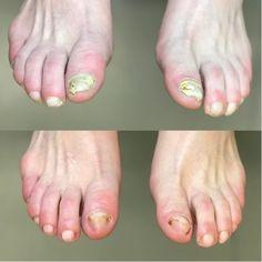 Dlaczego grzybica stóp jest tak trudna do wyleczenia? Persona, Maya, Nails, Health, Allergies, Lose Belly Fat, Yellow Nails, Health Remedies, Provence