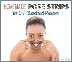 Homemade Pore Strips