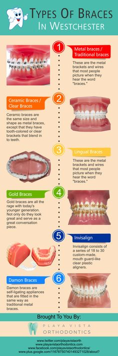 Review get whiter teeth at supersmile orthodontics with glo science getting braces to help straighten your teeth no longer means needing to have a solutioingenieria Choice Image