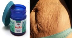 How To Use Vicks Vaporub To Get Rid Of Accumulated Belly Fat And Cellulite, Eliminate Stretch Marks And Have Firmer Skin - Healthy Remedies House Vicks Vaporub, Cellulite, Diy Beauté, Body Wraps, Tips Belleza, Skin Firming, Natural Home Remedies, Fitness Workouts, Stretch Marks