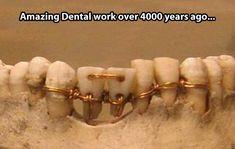Vintage dental work…can u imagine the pain?!