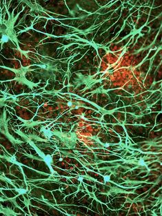 Stem cell-derived nerve cells. Fluorescence light micrograph of neural (nerve) stem cells that have been derived from human embryonic stem cells (HESC). Glial fibrillary acidic protein (GFAP) is cyan, and cell nuclei are red.