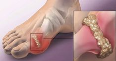 What Is Gout And Who Gets It?