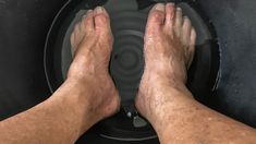 Do you battle unsightly and painful calluses on your feet and toes? How would you like to get rid of them naturally at home? All you need is a little bit of bicarbonate soda and milk for a refreshing and healing baking soda foot soak.