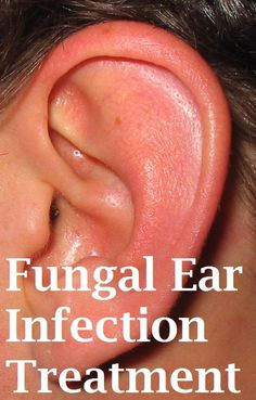 How to treat fungal ear infection