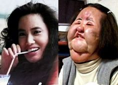 A former Korean model addicted to plastic surgery injected cooking oil into her face when doctors refused to perform any more cosmetic operations on her Hang Mioku now ab. Plastic Surgery Before After, Plastic Surgery Gone Wrong, Korean Plastic Surgery, Celebrity Plastic Surgery, Lil Kim Plastic Surgery, Bad Plastic Surgeries, Plastic Surgery Procedures, Skin Care Regimen, Makeup