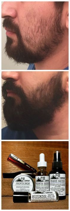 I used to have such patchy beard growth but after using Beard and Company's all-natural Beard and Mustache Growth Kit, my beard has grown in thicker and fuller thanks to the addition of omega-3 fatty acids and essential nutrients. Promotes the growth of healthy NEW hair!