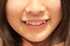 Trồng răng thẩm mỹ