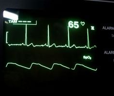 Supraventricular tachycardia: Long term side effects · Cardiovascular Disorders and Diseases articles   Body & Health Conditions center   SteadyHealth.com