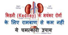 किडनी (Kedney) के भयंकर रोगों के लिए रामबाण से कम नहीं ये चमत्कारी उपाय Remedies, Health, Health Care, Home Remedies, Salud