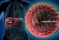 The hepatitis C virus is responsible for a range of health concerns. The symptoms spread across the entire body, but can be hard to pinpoint to the HCV infection itself. Here we have compiled a list of the ten most frequent hepatitis C symptoms. Liver Cancer, Liver Disease, Celiac Disease, Disease Symptoms, Hepatitis C, Fatty Liver, Home Remedies, Natural Remedies, The Cure