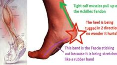 This ONE Stretch Relieves Plantar Fasciitis, Shin Splints, Achilles Pain and Heel Pain – Care – Skin care , beauty ideas and skin care tips Tight Achilles Tendon, Achilles Pain, Achilles Stretches, Achilles Tendonitis Exercises, Calf Stretches, Plantar Fasciitis Exercises, Plantar Fasciitis Treatment, Shin Splint Exercises, Shin Splints