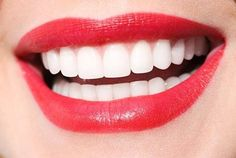 """You're probably asking yourself """"Where can I find teeth whitening near me?"""" Dental Smiles here to answer that question for you. Call (305) 667-5539 today to make your appointment with one of our Coral Gables teeth whitening dentist and learn more about teeth whitening in Coral Gables treatment."""