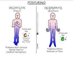 Decorticate vs decerebrate posturing--