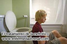 En la etapa 4 enfermedad renal,este la función renal esta muy dañado.Como consecuencia, se producen muchos síntomas y complicaciones.Las náuseas y los vómitos son los sintomas comunes que se desarrollan las personas