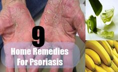 9 Effective Home Remedies For Psoriasis Psoriasis On Hands, Psoriasis Skin, Natural Treatments, Natural Cures, Natural Health, Home Remedies For Psoriasis, Skin Care Remedies, Health Heal, Beauty