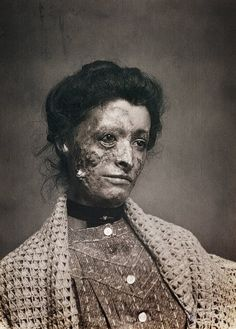 Victorian Post-Mortem photograph of a woman who died in a factory fire