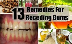 13 Home Remedies For Receding Gums - Natural Treatments & Cure For Receding Gums   Find Home Remedy & Supplements