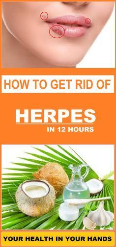 HOW TO GET RID OF HERPES IN 12 HOURS: HOME REMEDY