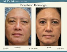 Patient treated with Fraxel and Thermage at La Jolla Cosmetic Laser Clinic.