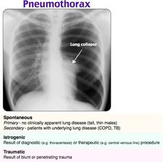 Pneumothorax Rosh Review