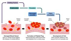 Cuts in the skin are sealed by blood clotting AND Clotting factors are released from platelets AND The cascade results in the rapid conversion of fibrinogen to fibrin by thrombin AND Causes and consequences of blood clot formation in coronary arteries Nursing Programs, Nursing Notes, Pathophysiology Nursing, Pharmacology, Coagulation Cascade, Np School, Pharmacy Student, Medical Laboratory Science, Biology Lessons