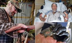 man survives all three forms of Bubonic plague (Oregon) also discusses  other cases in the usa recently... Warning! Graphic photos  Bubonic, septicemic, pneumonic