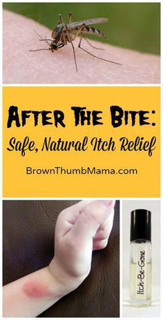 Natural Bug Bite Itch Relief: BrownThumbMama.com