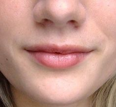 canker sore home remedy Home Remedies for a Canker Sore