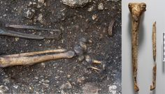 Left: 6th century AD male skeleton with prosthesis in situ during archaeological excavation. Right: Evidence of amputation of the left foot and ankle. (Images courtesy OEAI, the Austrian Archaeological Insitute.)