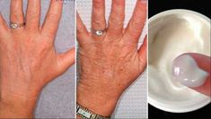 If you have a very active life and without rest you will notice that time has left many marks on your skin, that creams and products do not solve. So, we recommend you try natural treatments to improve the care of your hands and erase those annoying wrink Beauty Secrets, Beauty Hacks, Diy Beauty, Beauty Makeup, Beauty Products, Natural Treatments, Natural Remedies, Wrinkled Skin, Hand Care