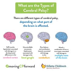 What Are the Types of Cerebral Palsy Infographic by Gillette Children's Specialty Healthcare