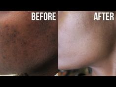 Get Rid of Acne & Hyperpigmentation (Dark Spots) - YouTube