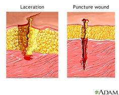 Good for understanding difference between laceration and puncture wounds; on the outside, a laceration would be jagged and have skin torn off whereas a puncture wound would look like a hole